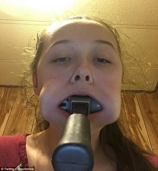 美14岁少女为追星将锤子塞进嘴里 照片遭疯传