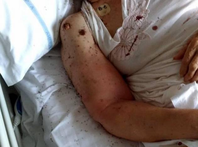 意大利这家医院里发生的事, 恐怕光看图片你都承受不住!