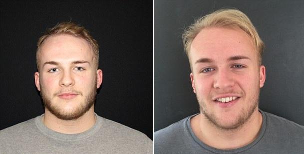 英父亲送植发手术给脱发儿子作18岁生日礼物