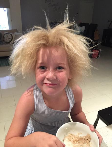 """澳女童患蓬发综合症 """"狂野""""金发吸睛无数"""